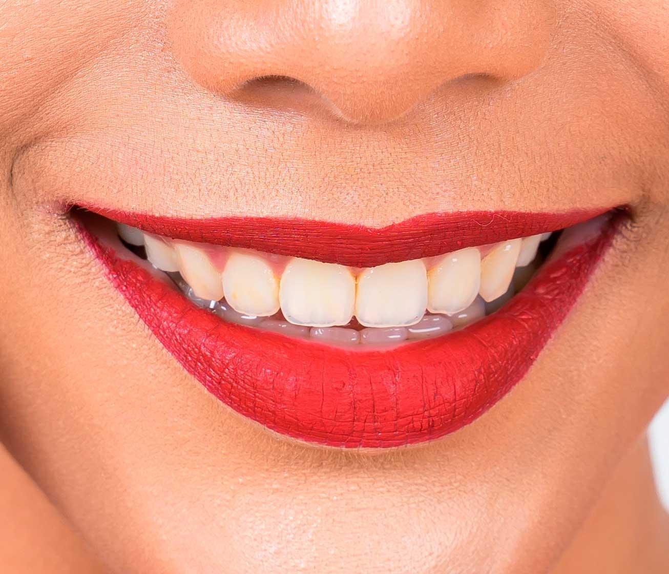 clinica-murcia-tratamiento-ortodoncia-www.clinicamasbermejo.com