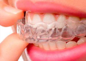 tratamiento-invisaline-clinica-dental-mas-bermejo-dentista-www.clinicamasbermejo.com