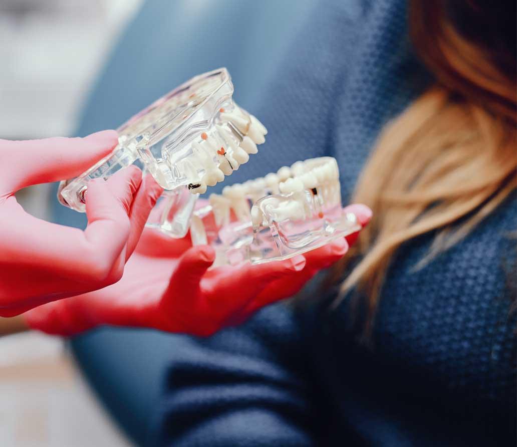 salud-implantes-blog-clinica-dental-mas-bermejo-murcia